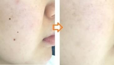 顔のほくろレーザー除去の経過 ビフォー・アフター画像・写真150日