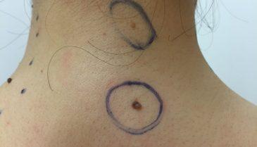 首の後ろの真ん中のホクロを除去!経過画像(女性)
